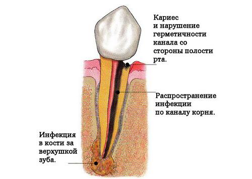 Что делать если воспалился корень зуба в