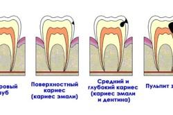 Кариес и пульпит зуба