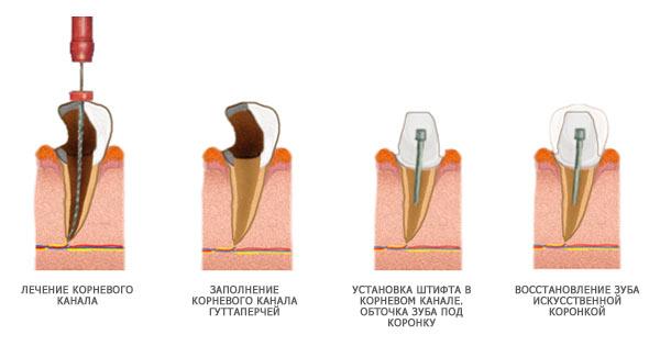 Требования к штифтам для зубов