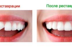 Зубы до и после наращивания