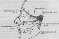 Неврит тройничкового нерва