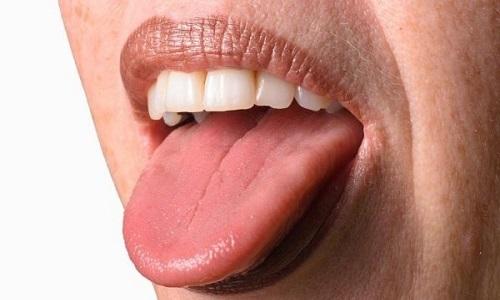 Проблема потемнения языка