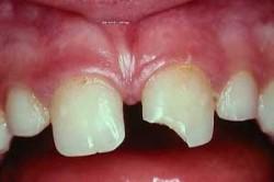 Отлом коронки зуба - последствие кариеса
