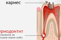 Схема периодонтита