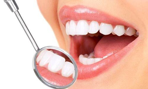 Красивые зубы после наращивания