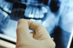 Рентген ретинированного зуба