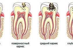 Стадии кариеса зубов