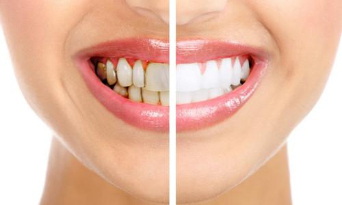 Проблема желтых зубов