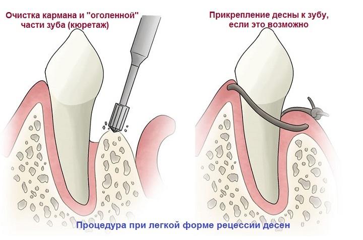 Что значит когда десна отходит от зуба