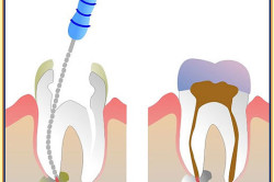 Перепломбировка каналов зуба