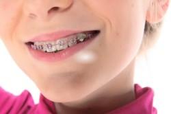 Неправильный прикус - причина оголения шейки зуба