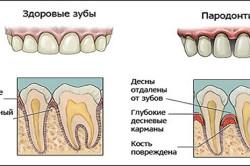 Пародонтит - последствие аномалии уздечки