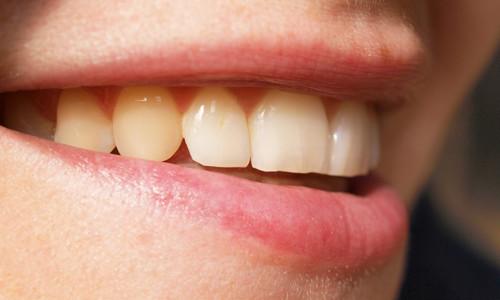 Проблема клиновидного дефекта зубов