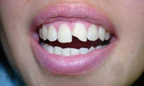 Проблема сколотого зуба
