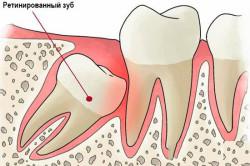 Расположение ретинированного зуба