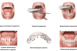Схема имплантации