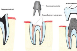 Схема протезирования зуба