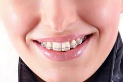 Выравнивание зубов перед протезированием