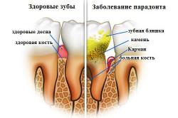оголения шейки зуба