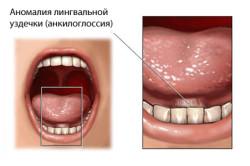 Анкилоглоссия