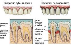 Хронический периодонтит причина появления шишки