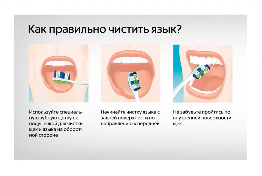 Отбеливание зубов одинцово zoom
