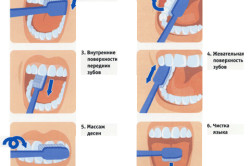 Тщательная и бережная гигиена зубов при пародонтозе