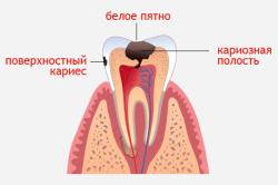 Схема кариеса