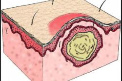 Схема ретенционной кисты