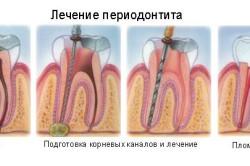 Принцип лечения периодонтита