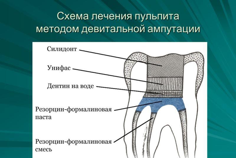 запах изо рта причины елена малышева