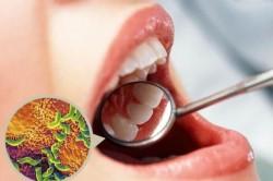 Недостаточная гигиена полости рта как причина афтозного стоматита