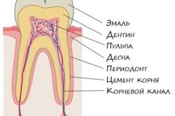 Расположение зубного нерва