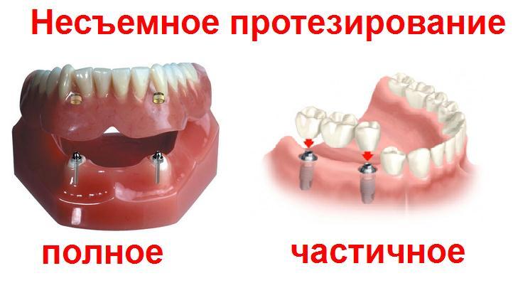 Протезирование зубов несъемный протез