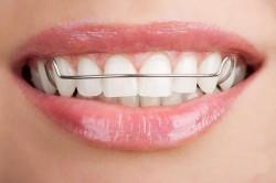 Польза пластинки для выравнивания зубов