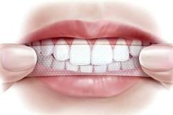 Использование пластинки для отбеливания зубов