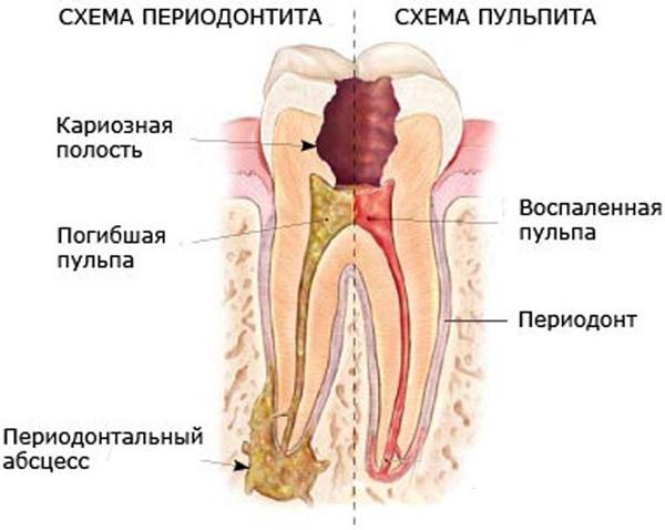Удалить нервы из зуба при домашних условиях