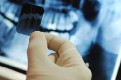 Рентгенологический снимок зуба