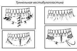 Метод туннельной вестибулопластики