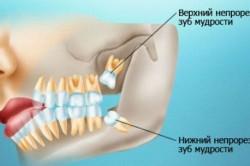 Расположение зубов мудрости в десне